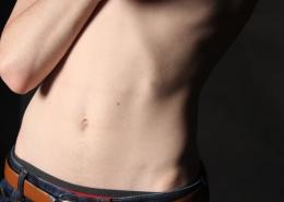 abdomen estomac maladie de crohn endométriose infertilité fibrome kyste